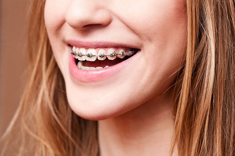 Orthodontics in Tarzana