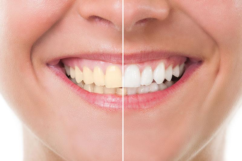 Teeth Whitening in Tarzana